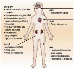 tuberozinė sklerozė