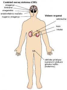 Von Hippel-Lindau sindromas