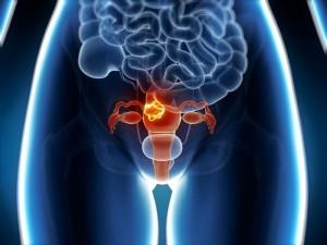 Gimdos kūno vėžys